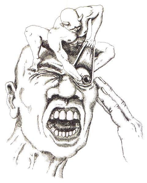 The_Cluster_Headache